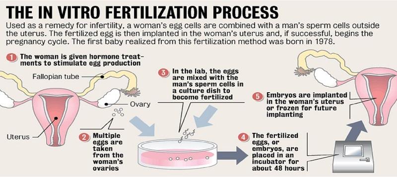 IVF Procedure